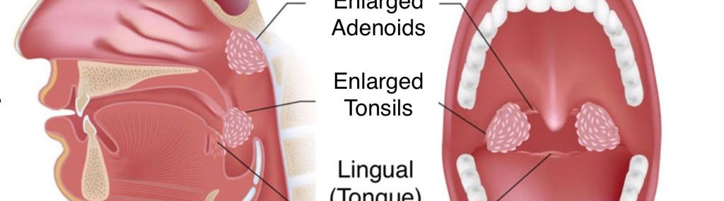 Enlarged-Tonsils-and-Adenoids